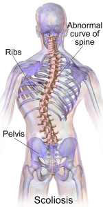 Scoliosis illustration